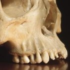 Forensic anthropologists can compare bones to medical records to confirm an identity.