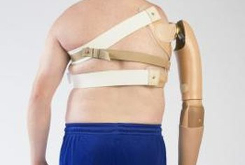 Electronic prosthetics eliminate the need for a body harness.