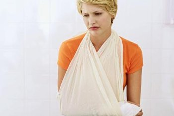 Slings help support the weight of a long arm splint.