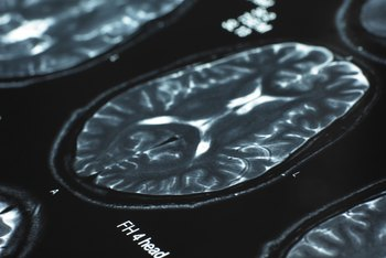 Modern imaging technology has revolutionized psychiatry by providing insights into the brain's physical workings.