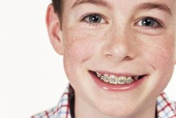 Orthodontia can correct serious dental problems, as well as improving appearance.