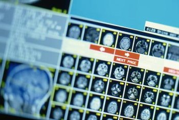 MRI technicians may work days, evenings, weekends or flexible schedules.