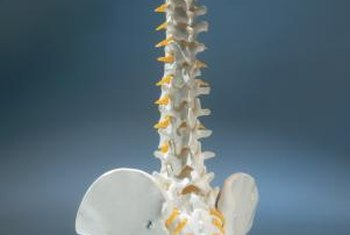 Pars defects often lead to spondylolisthesis.