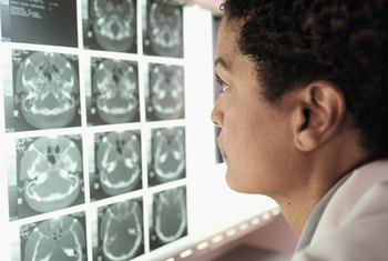 "CT scanning can provide doctors with a 3-D ""slice"" of the brain or other body tissues."
