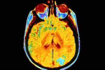 Nuclear medicine can be used to create vivid images of brain cancers and other irregularities.