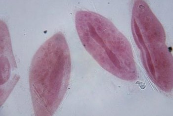 A paramecium is one of the one-celled protists.