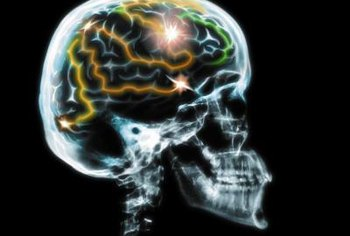 Neurologists treat disorders of the brain.