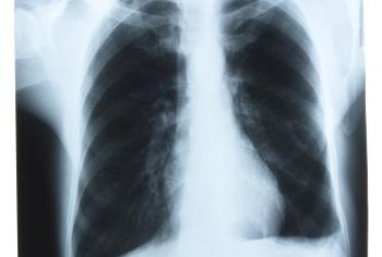 Emphysema and lung cancer can occur together.
