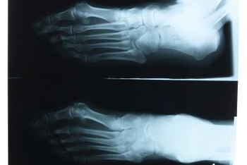 Podiatrists and orthopedic surgeons can both treat the foot.
