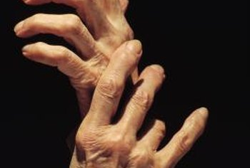Finger deformities develop with chronic arthritis.