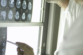 Doctors use a combination of technologies including X-rays, MRI, CAT and EEG to diagnose nervous system disorders.