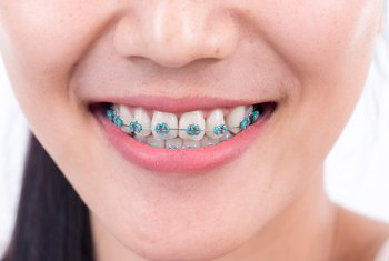 Educational Skills Required to Become an Orthodontist