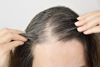Does Poor Nutrition Make Your Hair Grey?